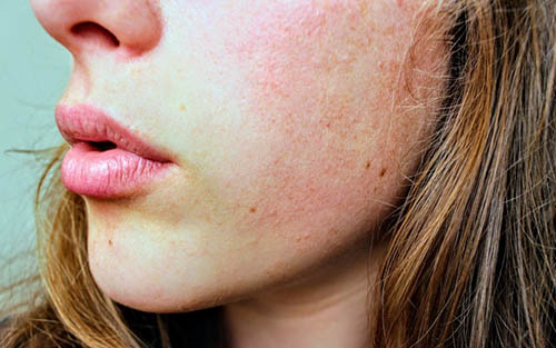 What You Need to Know About Herpes